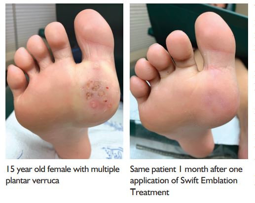 before after plantar wart removal